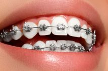 Should you get braces in adulthood?