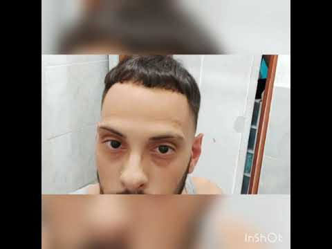 Best self quarantine haircut.. Thinning hair and Receiving hairline making it look natural and good